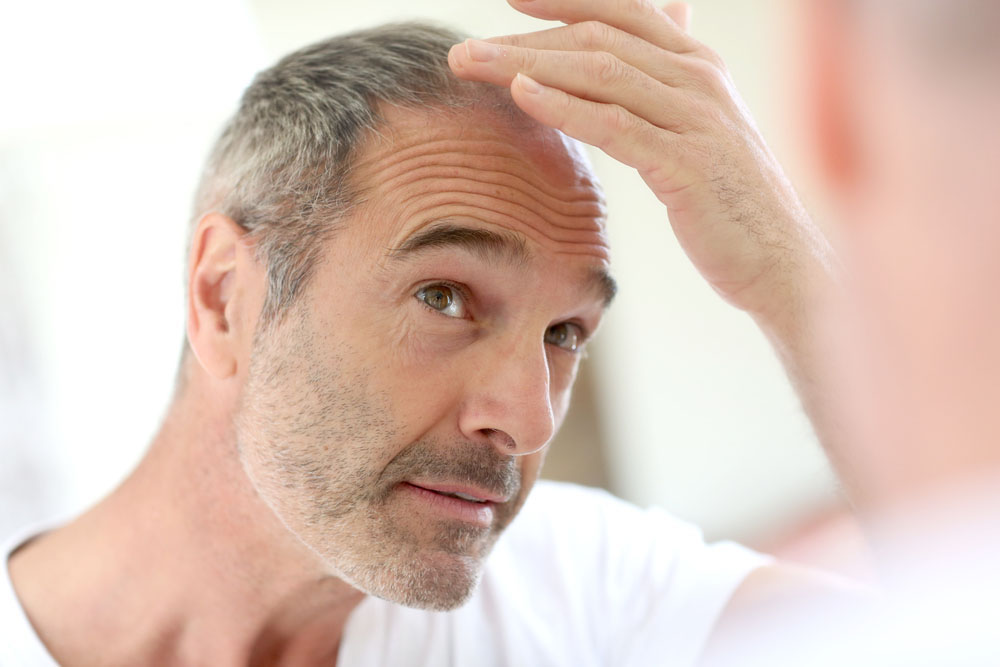 Https Onlinedoctor Lloydspharmacy Com Uk Hair Loss Treatment