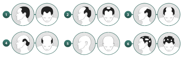 Types of Male-pattern baldness - RightDiagnosis.com